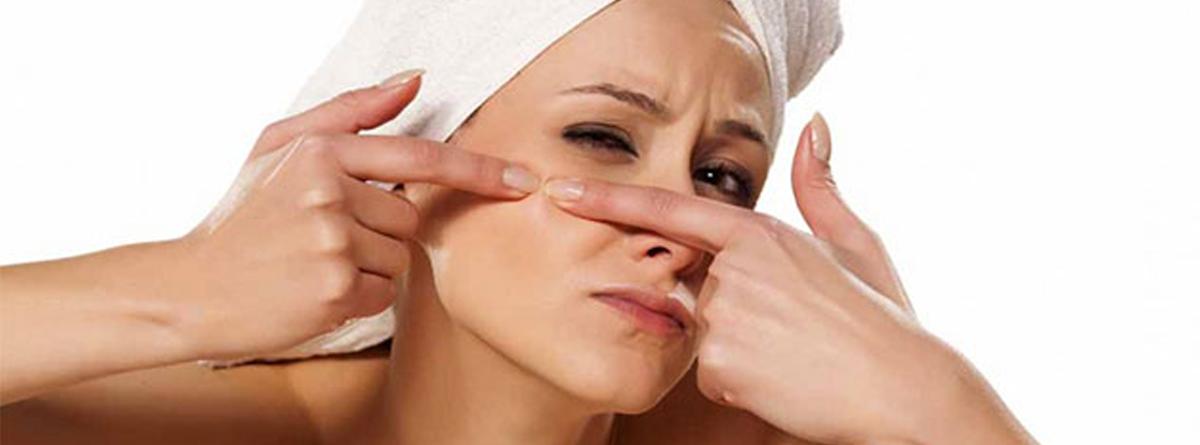 acne edult