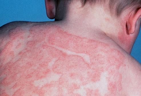 phototake_photo_of_infant_eczema